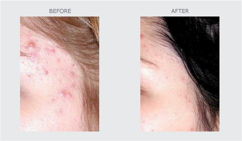 Young or Mature Skin with Problems